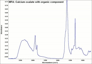 MFA- Calcium oxalate with organic component.jpg